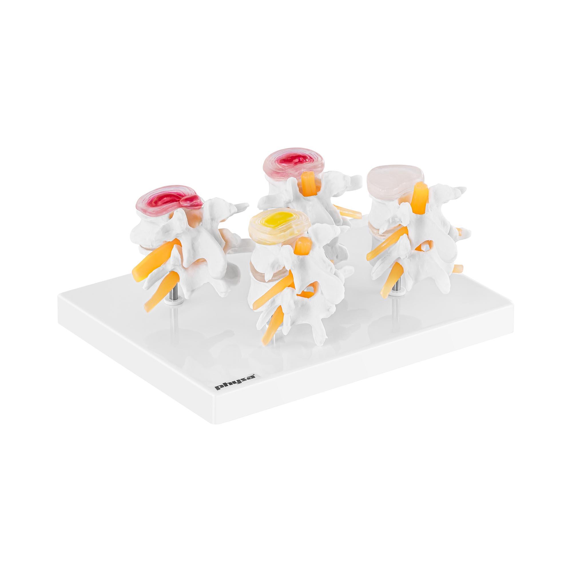 physa Lendenwirbel Modell - in 4 Teile zerlegbar - Originalgröße PHY-SM-7